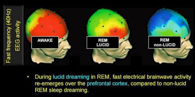 Đây là 3 phương pháp khoa học giúp bạn có được giấc mơ Lucid - Ảnh 1.