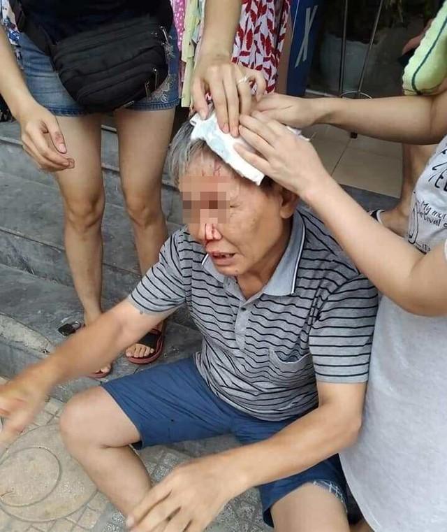 Hà Nội: Cụ ông bị ổ khóa từ trên tầng cao chung cư rơi trúng đầu khi dẫn cháu đi chơi dưới sảnh, cư dân hoang mang - Ảnh 1.