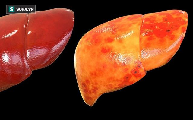 Không chỉ uống rượu, ăn chất béo cũng bị gan nhiễm mỡ: Đây là nguyên nhân ít ai ngờ tới - Ảnh 1.