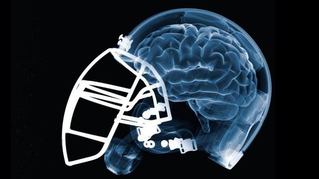 Căn bệnh bí ẩn chỉ được chẩn đoán sau khi bệnh nhân đã chết, bởi bác sĩ cần cắt não của họ - Ảnh 6.