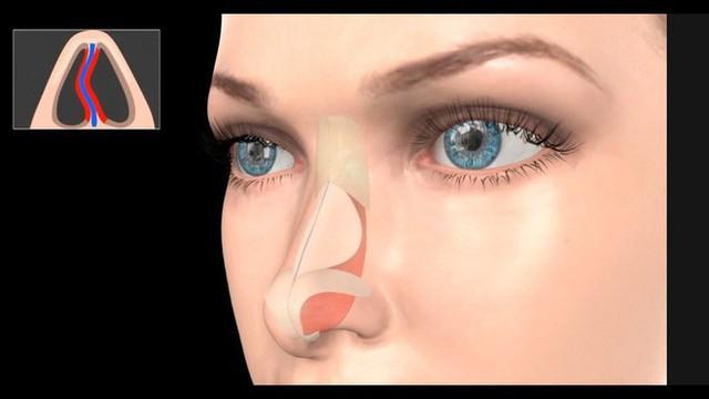 Chàng thanh niên thở bằng một lỗ mũi suốt từ bé đến lớn mà không hề hay biết, hút thuốc mới nhận ra - Ảnh 2.