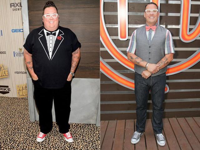 Hiểu về phẫu thuật giảm béo: phương pháp cứu cánh cho những người thừa cân quá độ - Ảnh 1.