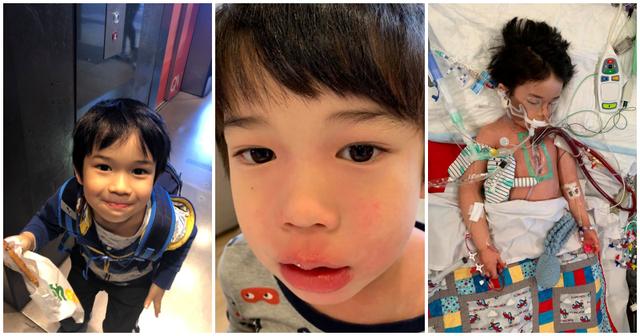 Bé trai 4 tuổi phải nằm viện 6 tháng vì bị nhiễm trùng máu và mắc bệnh do vi khuẩn ăn thịt, triệu chứng ban đầu chỉ là đau chân - Ảnh 2.