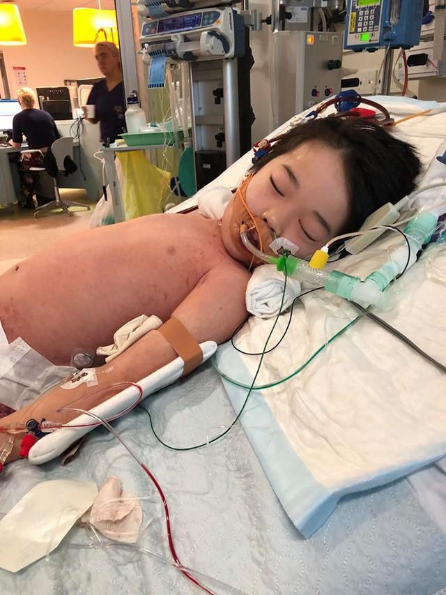 Bé trai 4 tuổi phải nằm viện 6 tháng vì bị nhiễm trùng máu và mắc bệnh do vi khuẩn ăn thịt, triệu chứng ban đầu chỉ là đau chân - Ảnh 3.