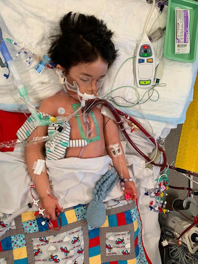 Bé trai 4 tuổi phải nằm viện 6 tháng vì bị nhiễm trùng máu và mắc bệnh do vi khuẩn ăn thịt, triệu chứng ban đầu chỉ là đau chân - Ảnh 6.