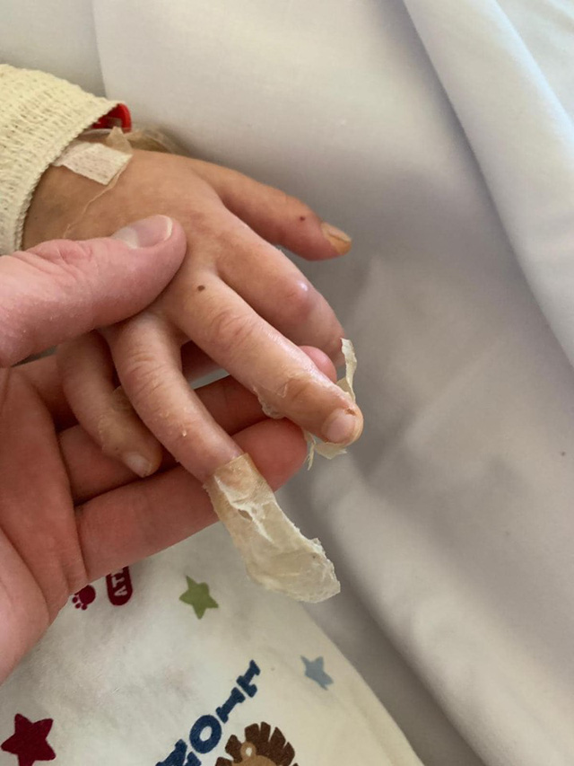 Bé trai 4 tuổi phải nằm viện 6 tháng vì bị nhiễm trùng máu và mắc bệnh do vi khuẩn ăn thịt, triệu chứng ban đầu chỉ là đau chân - Ảnh 8.