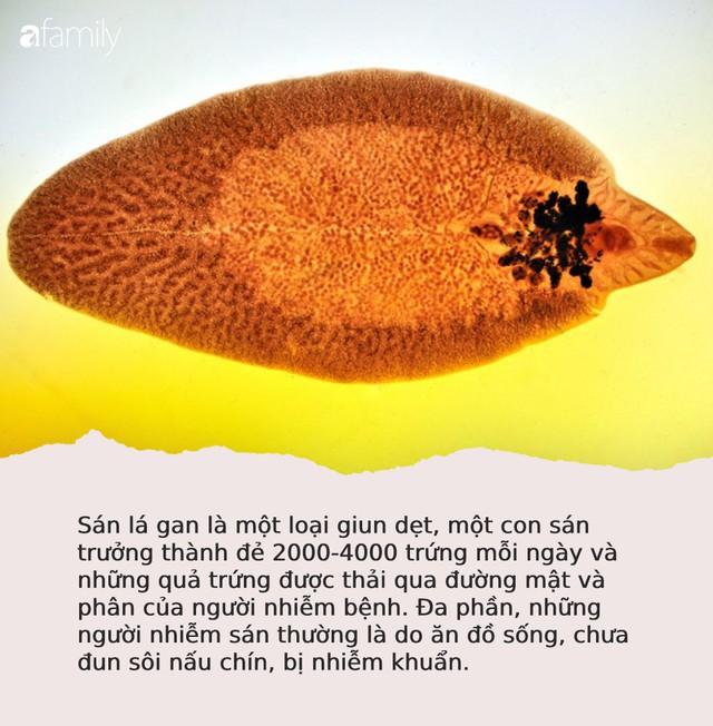 """Sán lá gan làm tổ dày đặc 2 chân và vùng kín người phụ nữ do """"nghiện"""" món ăn mà rất nhiều người Việt cũng mê mẩn - Ảnh 4."""
