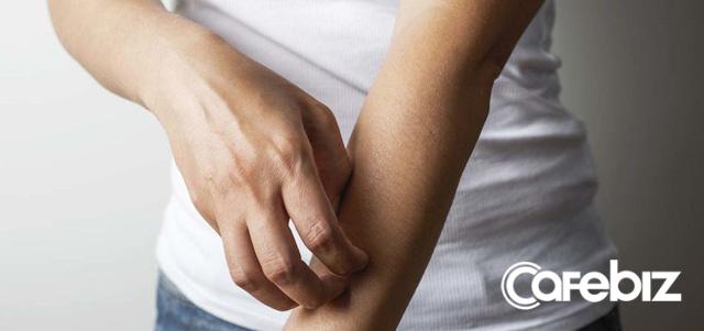 Nhiễm độc thủy ngân: Tất tần tật từ triệu chứng, cơ chế cho đến điều trị - Ảnh 2.