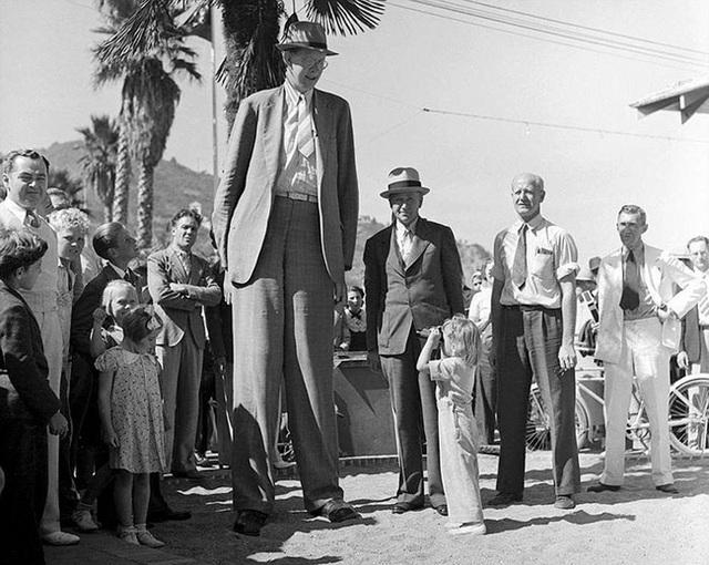 Cuộc đời kì lạ và bi thảm của người đàn ông cao nhất thế giới: Nổi tiếng khắp nơi nhưng ra đi ở tuổi 22 vì một vết nhiễm trùng nhỏ - Ảnh 8.