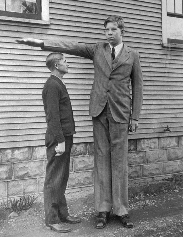 Cuộc đời kì lạ và bi thảm của người đàn ông cao nhất thế giới: Nổi tiếng khắp nơi nhưng ra đi ở tuổi 22 vì một vết nhiễm trùng nhỏ - Ảnh 9.