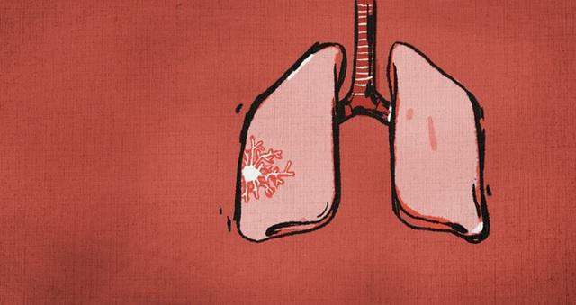 Câu chuyện đau lòng về người phụ nữ qua đời ngay trước thời điểm công bố dịch viêm phổi Vũ Hán qua lời kể người chồng và sự đấu tranh đến giây phút cuối cùng - Ảnh 2.