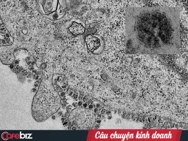 Bác sĩ BV Chợ Rẫy giải đáp về Virus corona: Lây nhiễm theo cơ chế nào? Qua đường không khí hay đường ăn uống? Vì sao gia đình 3 người Trung Quốc cùng sang Việt Nam mà chỉ 2 cha con nhiễm, còn người mẹ thì không? - Ảnh 2.