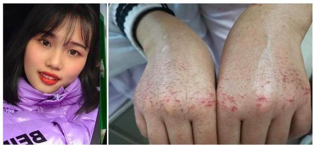 Đột tử sau 10 ngày 9 đêm chống dịch virus corona, bác sĩ trẻ 9X Trung Quốc đã làm việc đến kiệt sức - Ảnh 3.