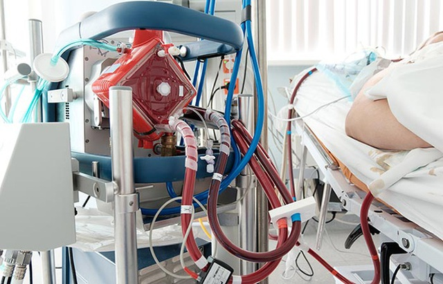 Vietsub: Máy trao đổi oxy qua màng ngoài cơ thể cứu sống bệnh nhân Covid-19 như thế nào? - Ảnh 5.