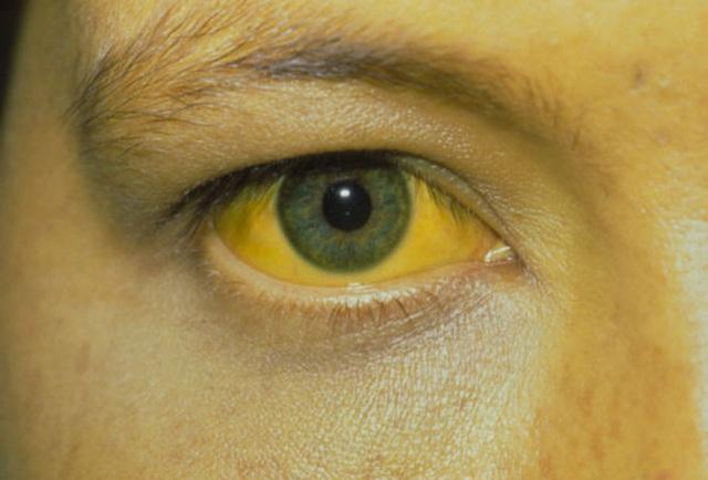 BS hướng dẫn cách nhìn ngoài thấy trong để xem bạn đang khỏe hay có bệnh: Rất hữu ích - Ảnh 2.