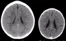 Đây là ảnh chụp não bộ của 2 đứa trẻ, đứa trẻ bên phải sẽ có một tương lai bất hạnh chỉ vì một hành động của phụ huynh