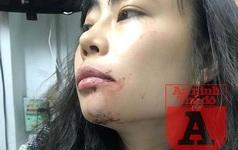 """Nữ hành khách bị lái xe Uber đánh """"bầm mặt"""": Tôi cần một lời xin lỗi công khai!"""