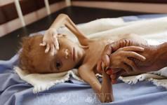 Ngày Lương thực thế giới 16/10: Cứ 9 người lại có 1 người không có đủ thức ăn