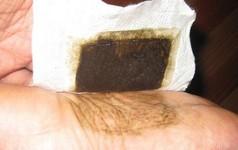 Sự thật về những miếng dán bàn chân giúp hút hết chất độc trong cơ thể