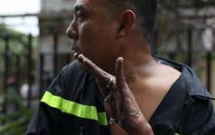 Hình ảnh anh lính cứu hỏa bị bỏng tuột da tay khi tham gia chữa cháy, cứu hộ tại chung cư Carina khiến nhiều người xót xa