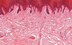 Phát hiện bộ phận mới trong cơ thể người, giúp hỗ trợ việc điều trị ung thư hiệu quả