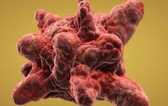 10 chất gây ung thư phổ biến mà bạn nên biết: Có nhiều thứ chúng ta tiếp xúc thường xuyên