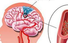 Đau đầu, chóng mặt: Dấu hiệu cảnh báo căn bệnh nguy hiểm không nên bỏ qua