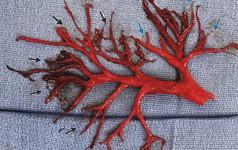 Đây là cục máu đông mà một bệnh nhân đã ho ra từ phổi, nó nằm ngoài sự tưởng tượng của tất cả các bác sĩ