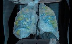 Đoạn video cho thấy virus corona có thể làm gì với phổi của bệnh nhân: Tất cả mọi người, xin hãy chống dịch thật nghiêm túc