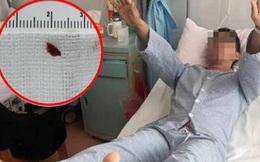 Chàng trai mới 27 tuổi đã bị nhồi máu não, nguyên nhân xuất phát từ thói quen mà phần lớn người trẻ đều mắc phải