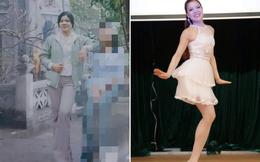 #howmuchhaveyouchangedchallenge: Cô gái mất 1 chân không ngại khoe ảnh quá khứ, thích múa và thường xuyên tham gia thiện nguyện