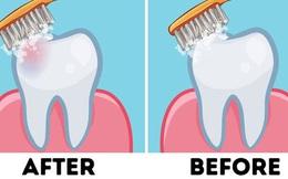 Chúng ta nên đánh răng trước hay sau khi ăn sáng? Tranh cãi nảy lửa của cộng đồng mạng cuối cùng đã được khoa học trả lời