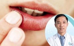 Nhiệt miệng gây nhiều đau đớn, bất tiện nhưng ai cũng có thể gặp, nhất là khi căng thẳng: Bác sĩ chuyên khoa chỉ cách đối phó đơn giản mà hiệu quả