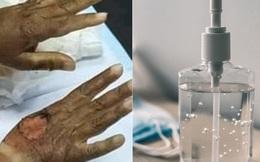 Thực hư chuyện bị bỏng vì cồn sót lại trên da sau khi dùng nước rửa tay khô và những điều cần chú ý để rửa tay an toàn trong mùa dịch Covid-19
