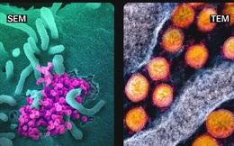 Giải ngố: Tại sao chúng ta không thể nhìn thấy virus SARS-CoV-2 bằng mắt thường, và làm thế nào để chụp được ảnh của chúng?