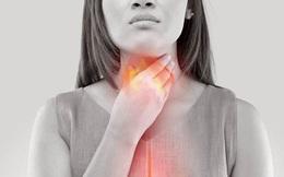 Ợ nóng có thể cảnh báo nguy cơ ung thư ruột