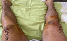 Gãy cả 2 chân vì squat 400 kg, VĐV cử tạ đăng ảnh đầu gối chi chít những mũi khâu