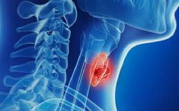 Ung thư tuyến giáp hoàn toàn có thể chữa khỏi nếu được chuẩn đoán và điều trị đúng cách: Bác sĩ chuyên khoa chỉ ra dấu hiệu nhận biết sớm của căn bệnh này