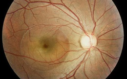 BS nhãn khoa: Người trẻ sử dụng điện thoại, máy tính nhiều có thể mắc bệnh mắt vĩnh viễn