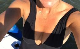 """Đi bơi bị cá mập cắn, người phụ nữ """"thoát chết"""", về nhà viết review... cám ơn bộ bikini"""