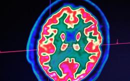 """Gen """"thây ma"""" khiến tế bào não người vẫn hoạt động nhiều giờ sau qua đời"""