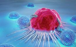 """Chuyên gia ung bướu tiết lộ """"liều thuốc triệu đô"""" tiêu diệt bệnh ung thư, giữ được mạng sống"""