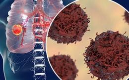 75% ung thư phổi không sớm phát hiện được, vì sao?