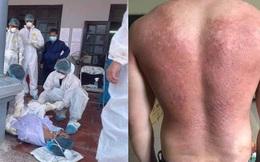 Hình ảnh bác sĩ nơi tâm dịch Bắc Giang khiến nhiều người xót xa: Phía sau lớp áo bảo hộ là tấm lưng cháy nắng phồng rộp