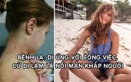Cô gái mắc bệnh dị ứng nặng với... công việc, bỏ làm chu du khắp thế giới liền khỏi bệnh