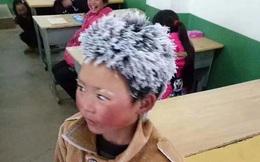 """""""Cậu bé đóng băng"""" đình đám ngày ấy: Bị buộc thôi học chỉ sau 1 tuần đến trường, cuộc sống hiện tại thay đổi ngoạn mục"""