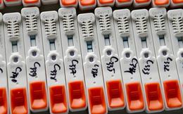 Bộ kit test nhanh COVID-19 giá gốc chỉ 35.000 đồng, trong nước tăng gấp nhiều lần? Thứ trưởng Bộ Y tế chính thức lên tiếng