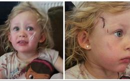 Vết thương đáng sợ của bé gái 3 tuổi và lời cảnh tỉnh cho cha mẹ khi dùng tủ ngăn kéo