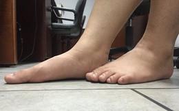 """Bàn chân """"sướng"""" hóa ra khổ"""