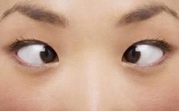 8 bài tập mắt đơn giản, hiệu quả tức thì mà dân văn phòng không thể bỏ qua